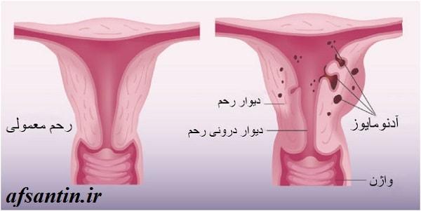 روش های موثر برای درمان خانگی آدنومیوز