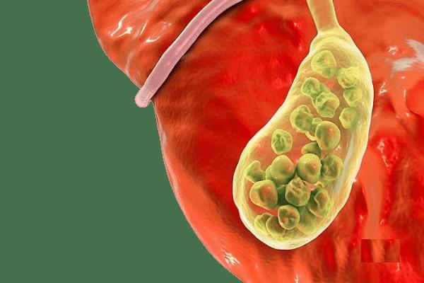 درمان سنگ کیسه صفرا با طب سنتی
