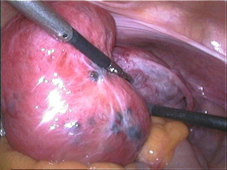 Adenomyosis uteri seen during laparoscopy: soft and enlarged uterus; the blue spots represent subserous endometriosis.
