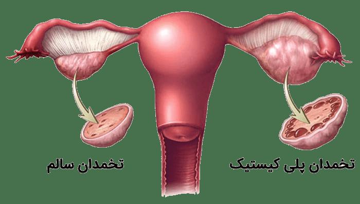 درمان خانگی کیست تخمدان توسط گیاهان دارویی