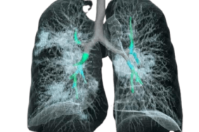 درمان ریه آسیب دیده کرونا